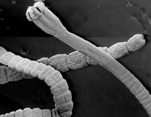 Паразит может жить в организме человека 10-20 лет