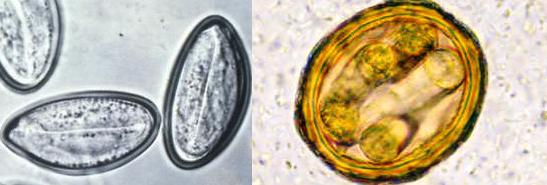 Класс нематод: справа - аскарида, слева - острица