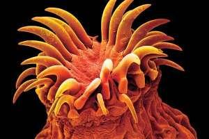 Крючки помогают глистам цепляться за стенки кишечника