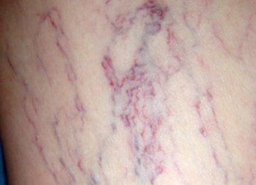 Симптомы и лечение закупорки вен на ногах в домашних условиях