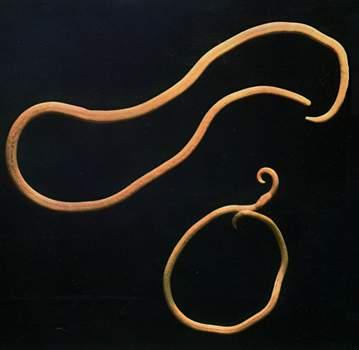 Аскариды - наиболее распространенный вид паразитов человеческого организма