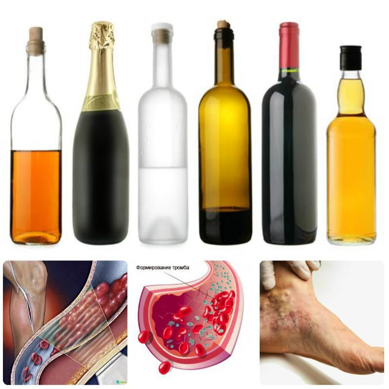 Тромбы и алкоголь