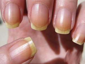 Нездоровые ногти могу свидетельствовать о каких-либо заболеваниях, в том числе и лямблиозе