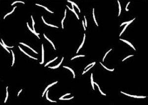 Острицы обитают в нижних отделах кишечника ребенка
