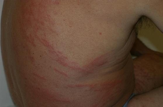 Ярко выраженные аллергические реакции обусловлены миграцией стронгилоид