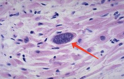 Токсоплазма под микроскопом