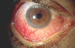Нарушение в глазодвигательной системе