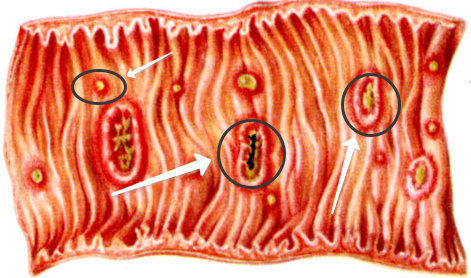 При амебиазе в кишечнике образуются язвочки
