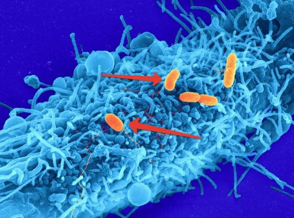 Бактерии, вызывающие заболевание Дизентерия