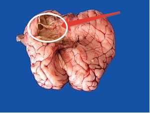 Область головного мозга, пораженная паразитом овечьим мозговиком