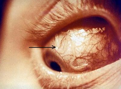Глазной филяриатоз