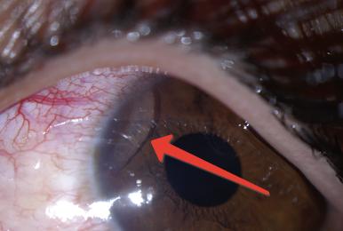 Офтальмомиаз - редкая, но не очень приятная болезнь