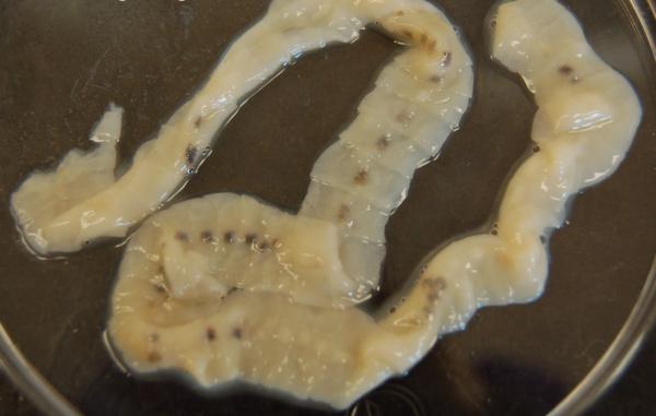 Дифиллоботриума латум - относится к ленточным червям, в длину может достигать нескольких десятков метров