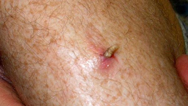 Насекомые откладывают яйца в открытые раны, развившиеся личинки в последствии выходят наружу. Хотя в некоторых случаях продолжают свою жизнедеятельность в организме, чем наносят значительный вред