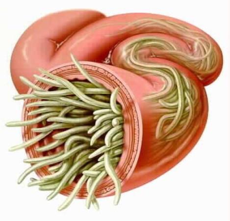 Большое количество паразитов может быть причиной закупорки кишечника