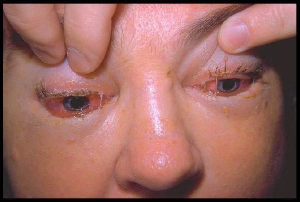 Трихины могут поражать мышцы глаз