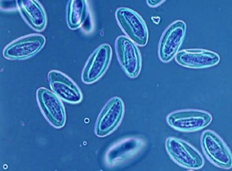 Одноклеточные, живущие у нас в кишечнике, могут вызвать опасное заболевание
