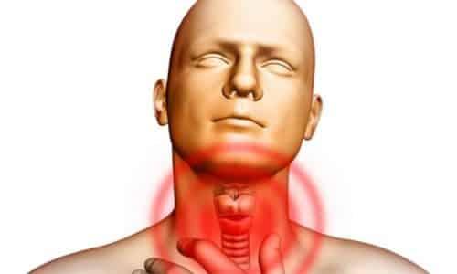 К жжению в горле приводит и заражение гортани некоторыми видами грибов