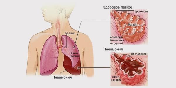Поражение легких пневмоцистозом