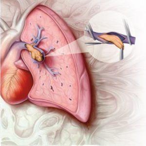 тромбоэмболические осложнения
