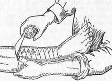 Выясняем зачем бинтуют ноги перед операцией