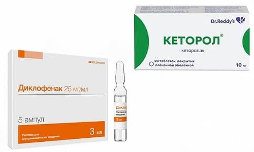 Для снятия болей сегодня часто назначают Кеторол или Диклофенак