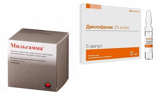 Боль при поражении головного мозга устраняют препараты Диклофенак и Мильгамма