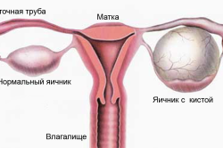 Киста яичника - причина нарушений цикла месячных