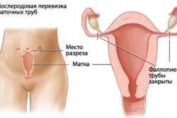 Послеродовая перевязка маточных труб