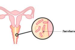 Бактериальный вагиноз - одна из причин белых выделений