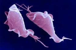 Trichomonas vaginalis - возбудитель трихомониаза