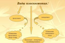 Виды плоскостопия