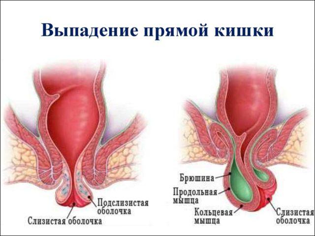 Причиной могут стать перенесенные ранее оперативные вмешательства, а также целый ряд индивидуальных анатомических особенностей строения кишечника и таза