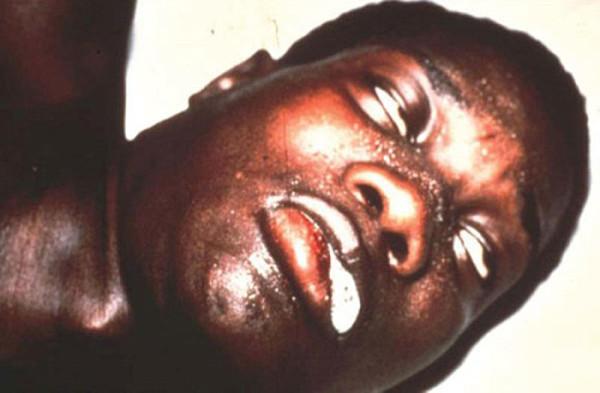 Чаще всего до крайней стадии болезнь доходит у местного населения Африканского континента, в виду отсутствия надлежащего лечения