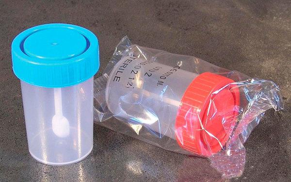 Используйте специальные емкости для сбора кала на анализы