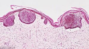 плоскоклеточный рак