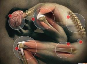 Ревматоидный артрит, остеохандроз, зубная боль, головная боль, мышцы вокруг суставов