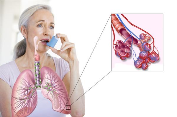 Отложенное лечение может привести к развитию бронхиальной астмы