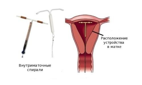 Расположение внутриматочной спирали в матке
