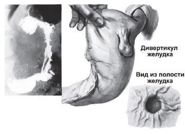 Информация о дивертикуле желудка