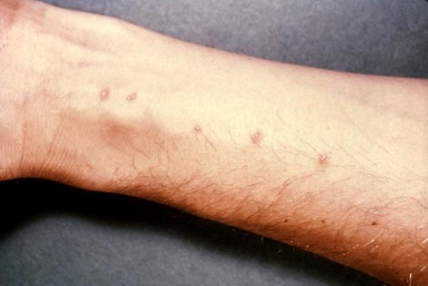 Шистосомы проникают в тело человека через поры на коже человека