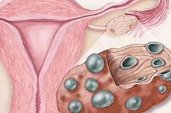 Эндометрит как причина коричневых выделений