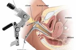 Колоноскопия для диагностики эрозии