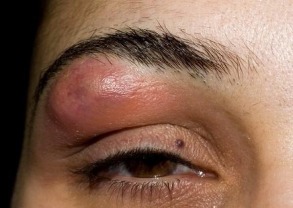 Фурункул - одна из разновидностей высыпаний на коже при инвазиях