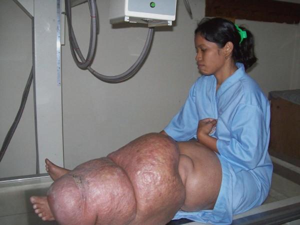 Запущенная форма паразитарной инвазии вухерериоза