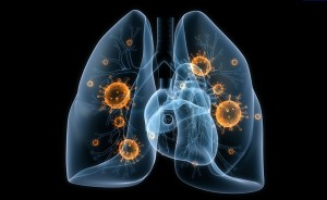 Флемоксин необходимо принимать при острых инфекциях, которые вызваны определенной группой бактерий, чувствительных к амоксициллину.