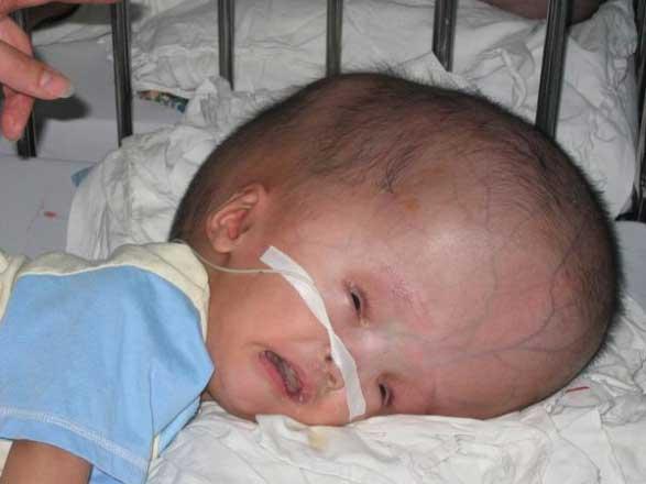 Острая форма болезни вызывает у ребенка водянку головного мозга