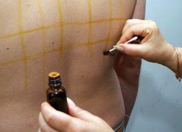 Для чего делают йодовую сетку и как правильно нарисовать на теле