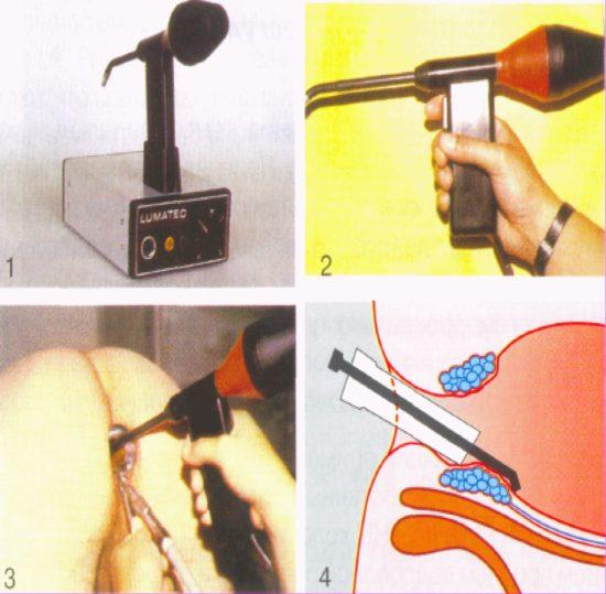 Оборудование для операции