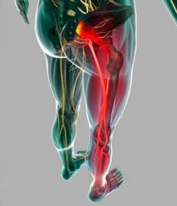ишиалгия симптомы, лечение